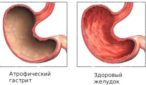 Стандарт лечения кардиологических больных