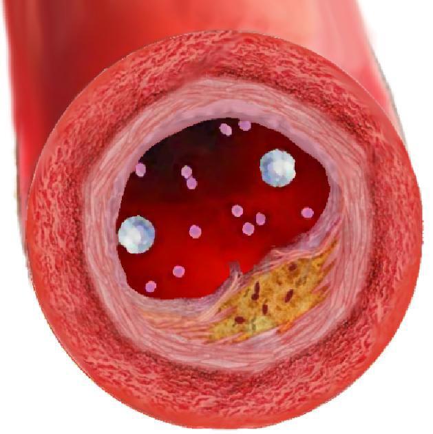 Мигрень и холестерин