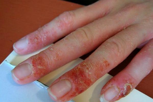 что вызывает аллергию на лице
