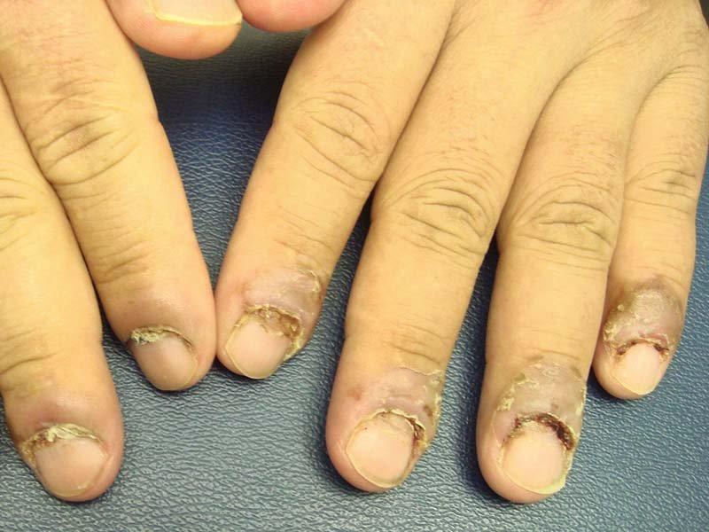 Что за болезнь когда отслаиваются ногти