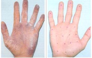 Гипергидроз как лечить ладоней