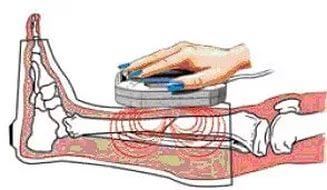 магнитотерапия для грыжи позвоночника