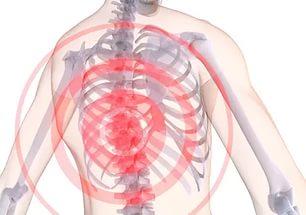 Кинезотерапия при боли в спине