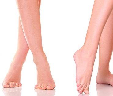 лечение плоскостопия 3 степени у взрослых