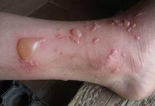 Аллергия на ногах красные пятна чешутся