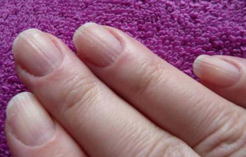 Почему ногти