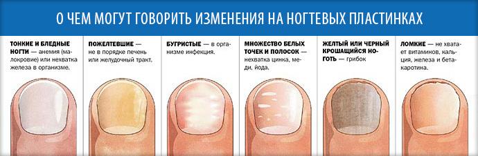 Что означают белые полоски на ногтях