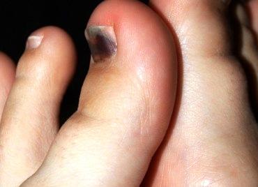 Можно ли вылечит грибок на ногте экзодерилом