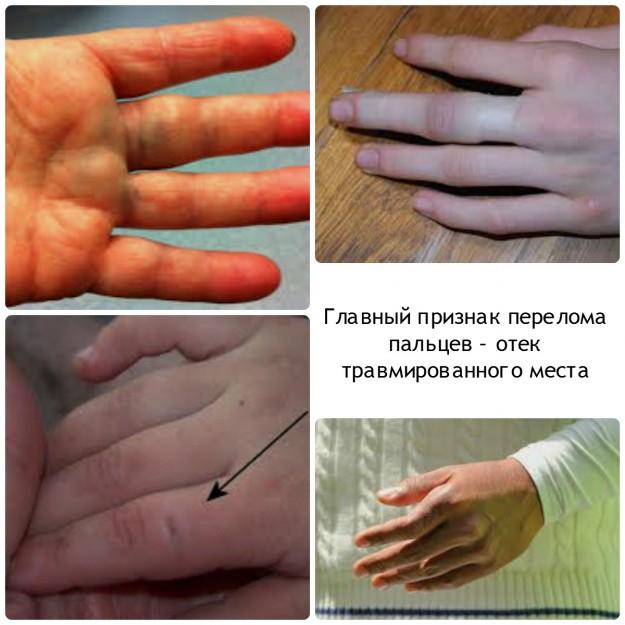 Лечение ушибленного большого пальца, первая помощь при ушибе ...