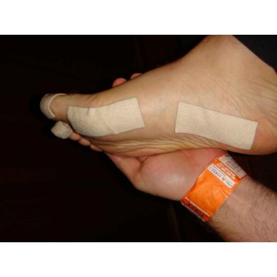 Как выполнить выравнивание косточки на ноге