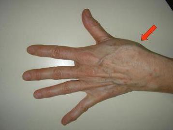 Боли сустава первого пальц шубоши лечение суставов