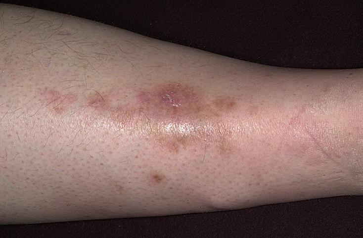 Диабет отеки ног как лечить