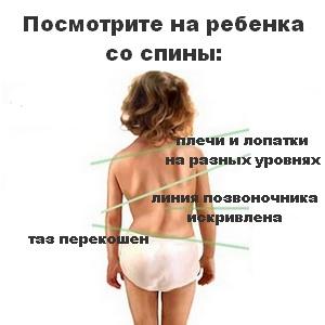 Осанка и корригирующие упражнения