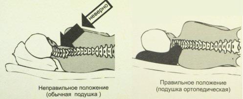 Правильное положение шеи при остеохондрозе