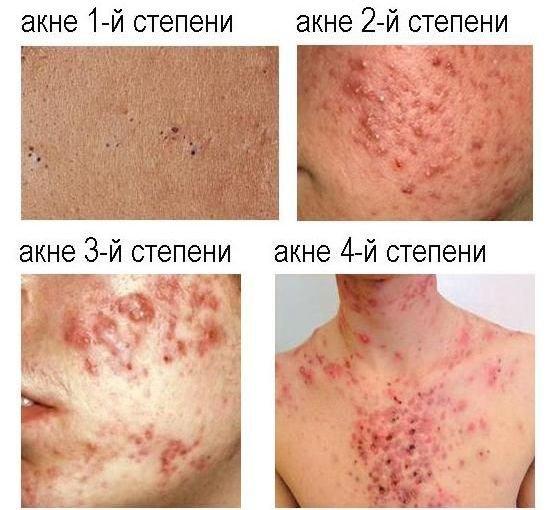 Аллергическая экзема на пальцах рук лечение