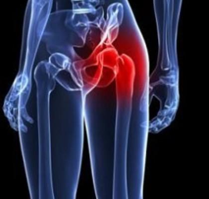 При болях в тазобедренном суставе мазь ревматизм боли в суставах