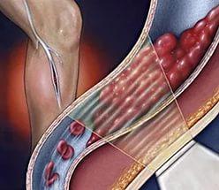 Можно ли массажем вылечить варикоз на ногах
