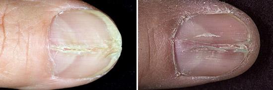 Продольная трещина на ногте руки лечение