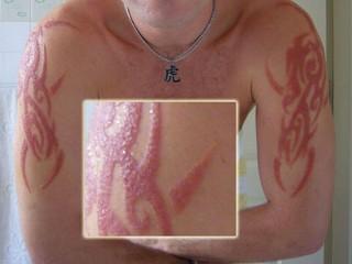 Аллергия на тату из хны