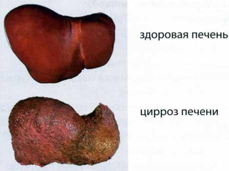 Фиброзирование печени при гепатите с