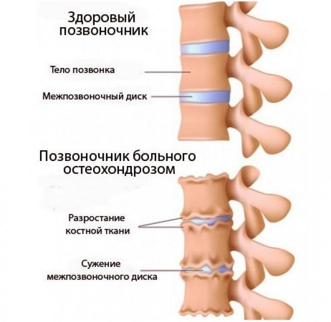 Лечение шеи гомеопатией