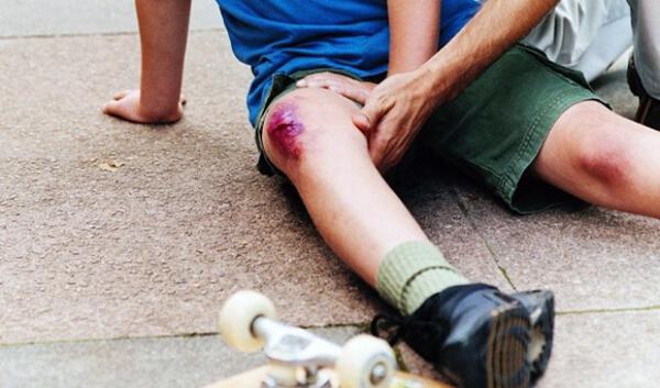 Разбито колено чем лечить мрт коленного сустава в москве цена