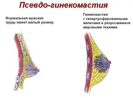 без хирургическое увеличение груди