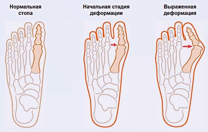 Метод штаба от косточек на ногах отзывы