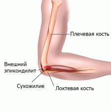 Травма локтевого сустава симптомы суставная гимнастика с ольгой янчук онлайнi