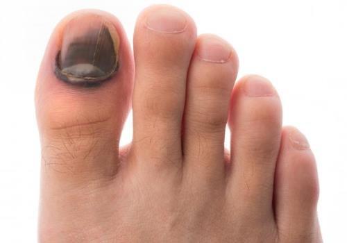 Что делать при ушибе ногтя, лечение ушибов ногтя на руке и ноге ...