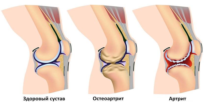 эндопротезирование коленного сустава в архангельске семашко