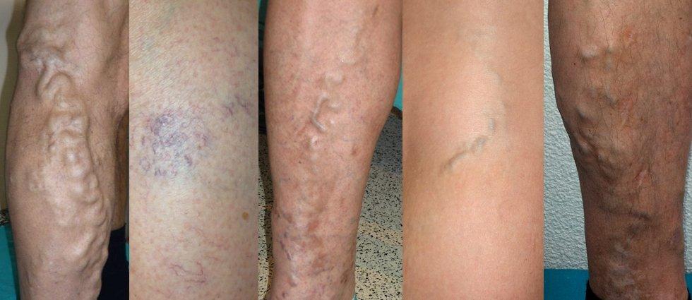 Варикозная болезнь на ногах лечение в домашних условиях