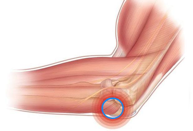Что нужно делать и как лечить ушиб локтевого сустава