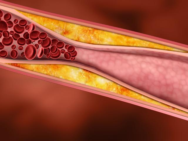 снизить уровень холестерина народными средствами