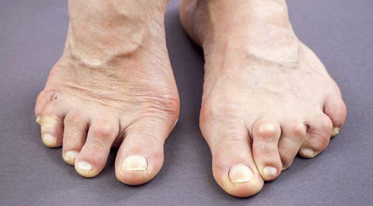 Как лечить артрит на ногах на суставах артрози артрит крестцово-подвздошного сустава