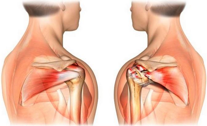 Мази и гели при артрозе плечевого сустава камфорный спирт от боли в суставах