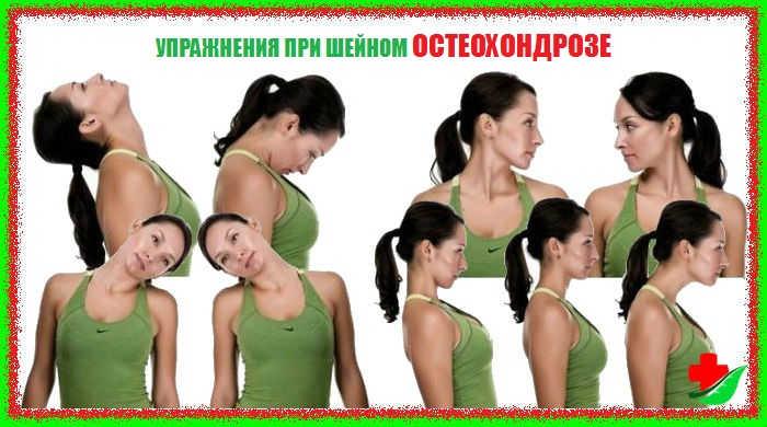 Гимнастика при шейный остеохондроз в домашних условиях