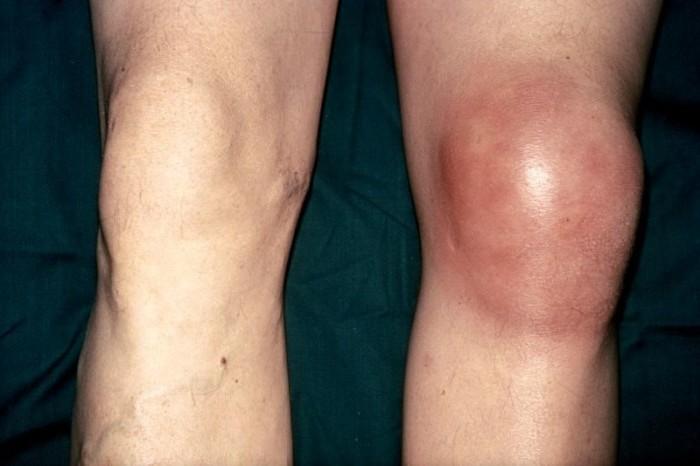 Коленный сустав опух почему болят суставы рук и ног правой стороны туловища