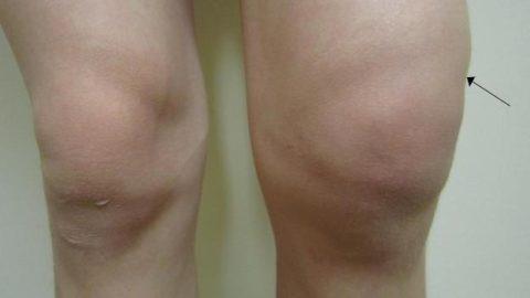 Распухло колено и болит чем лечить мазь