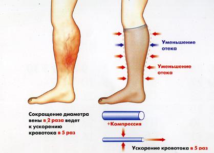 Прадакса лечение тромбозов