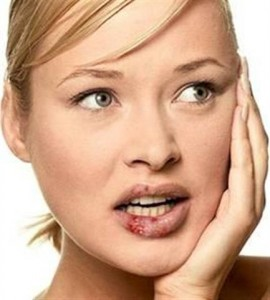Артроз голеностопный сустав лечение
