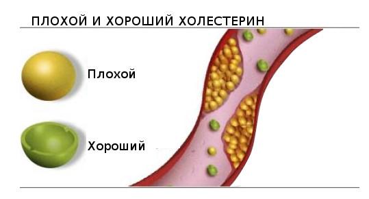 Анализ на спектр холестерина