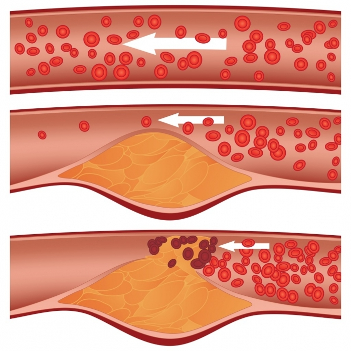 причины повышенного холестерина в крови у мужчин