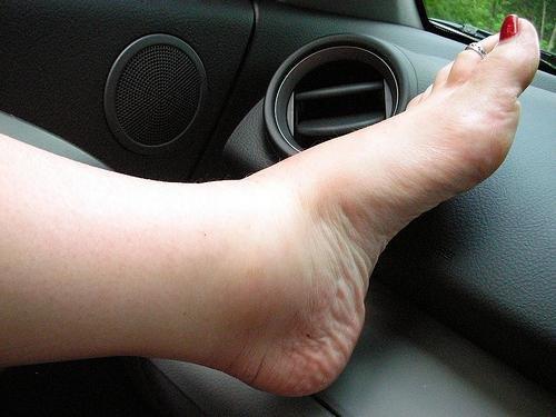 Болит сустав голеностопа упражя чтоб не болели суставы