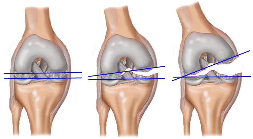 Растяжение связок коленного сустава лечение мази