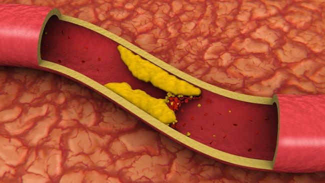 Яйца перепелиные понижают холестерин