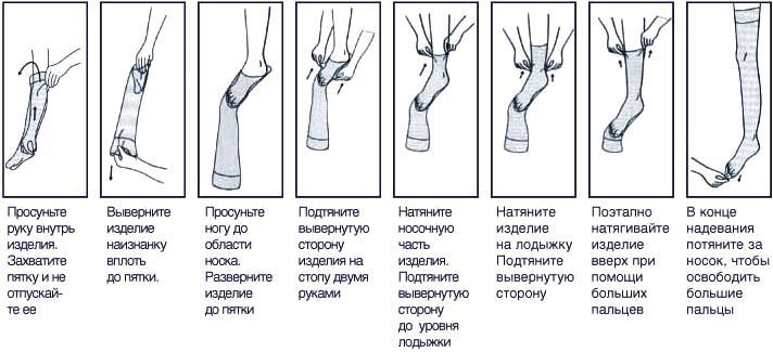 Как делают операцию при варикозе на ногах
