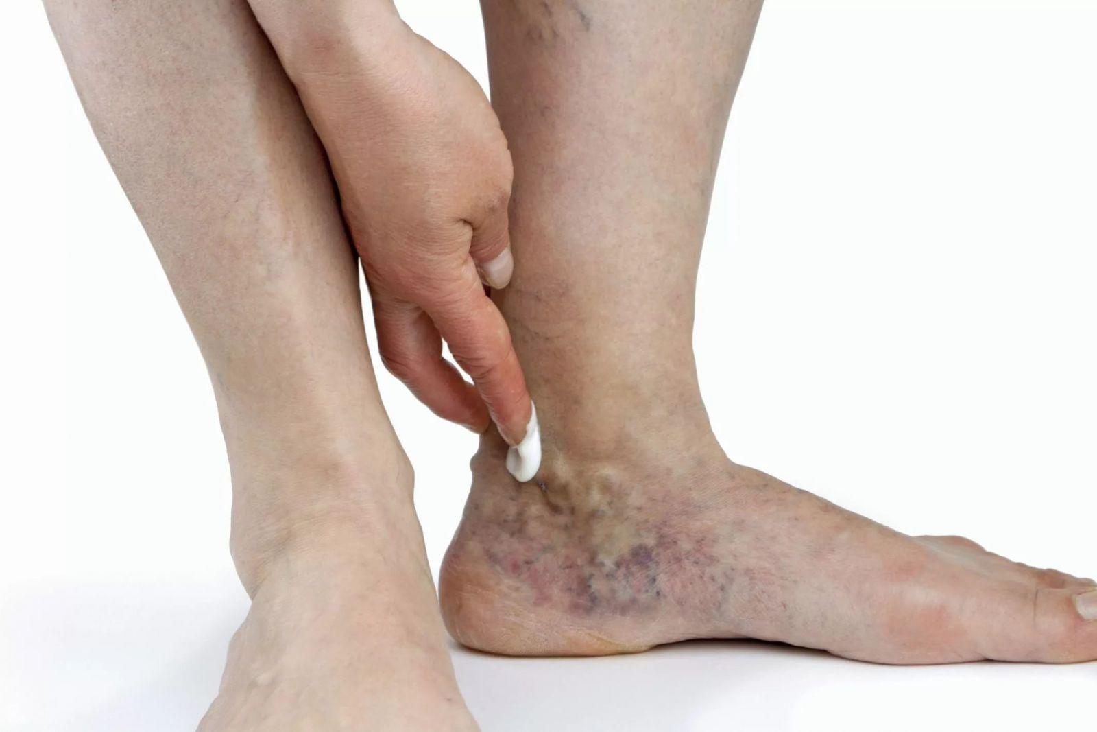 Тянет вены ног при беременности