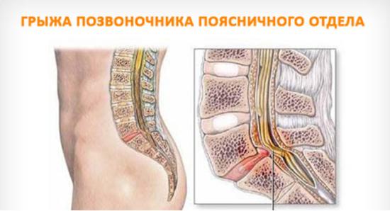 Остеохондроз шейно-грудного отдела симптомы лечение