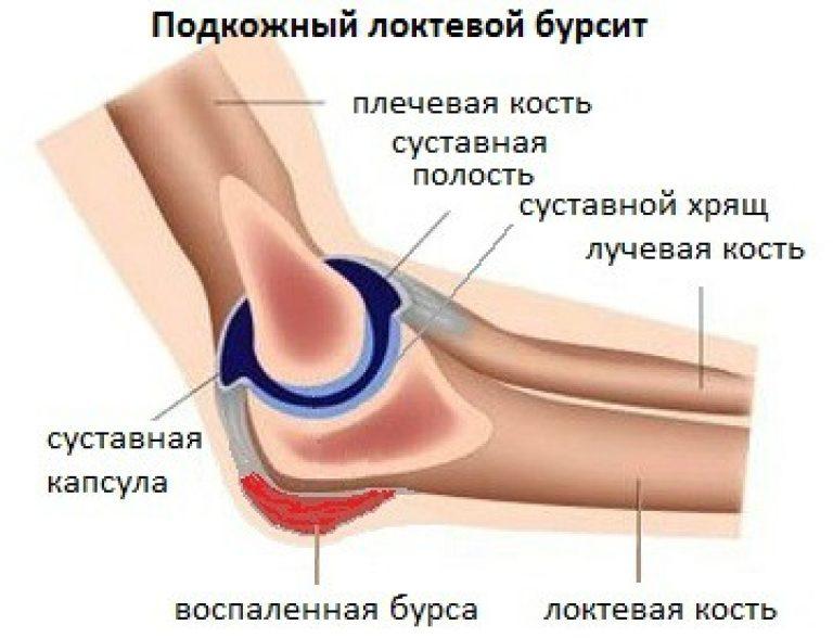 Болит локтевой сустав лечение история болезни артрит плечевого сустава